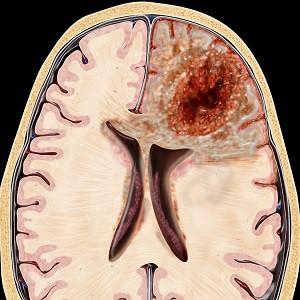 Особенности лечения глиобластомы головного мозга