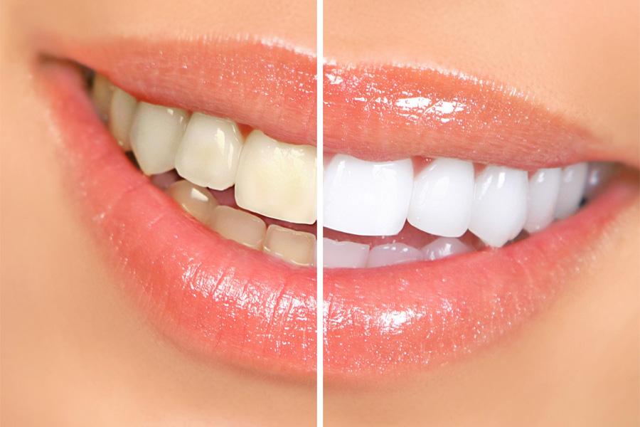 Множество причин отбелить зубы