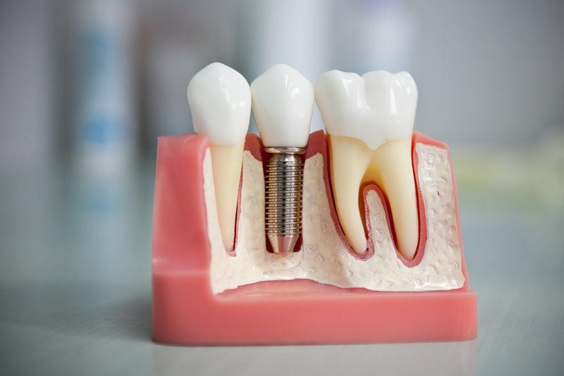 Сладкое и зубы